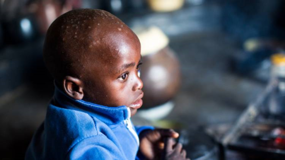 In Zimbabwe 1 in 4 children are malnourished.